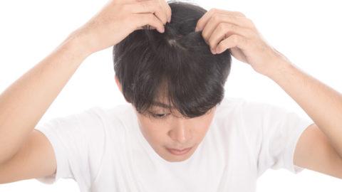 AGAによくある毛根の特徴とは?自分の毛根をチェックして早めの治療を!