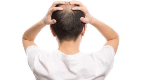 頭頂部の薄毛に悩んでいませんか?原因と改善策について医師が解説!